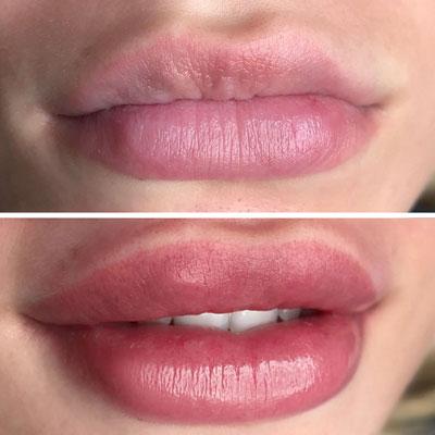 Как выполняется татуаж губ